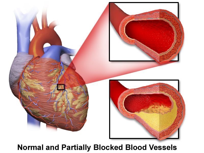 Drawing of heart with close up of artery interior with heart disease plaque and normal